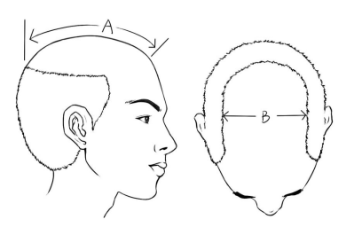 hair replacement system measure