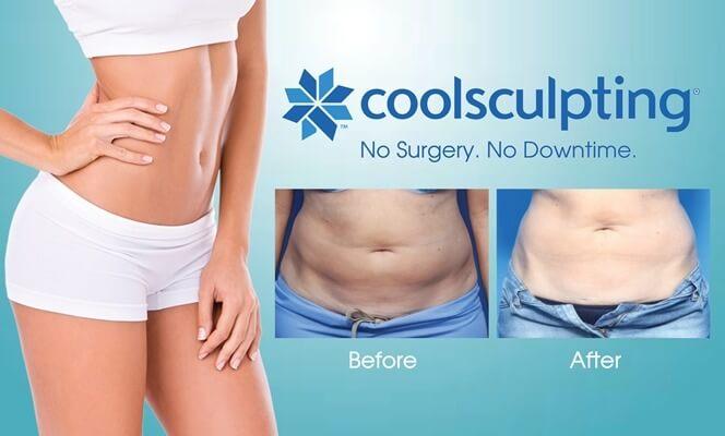 Toning the Summer Body with Coolsculpting